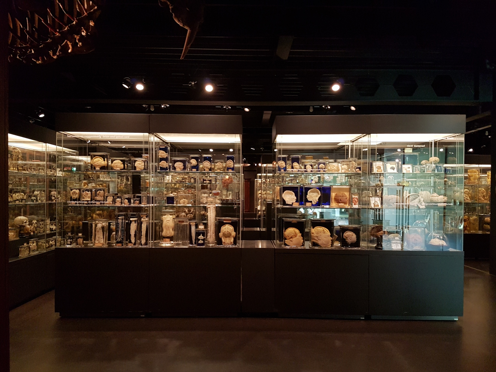 museum vrolik amsterdam pathology anatomy science unusual medical specimens